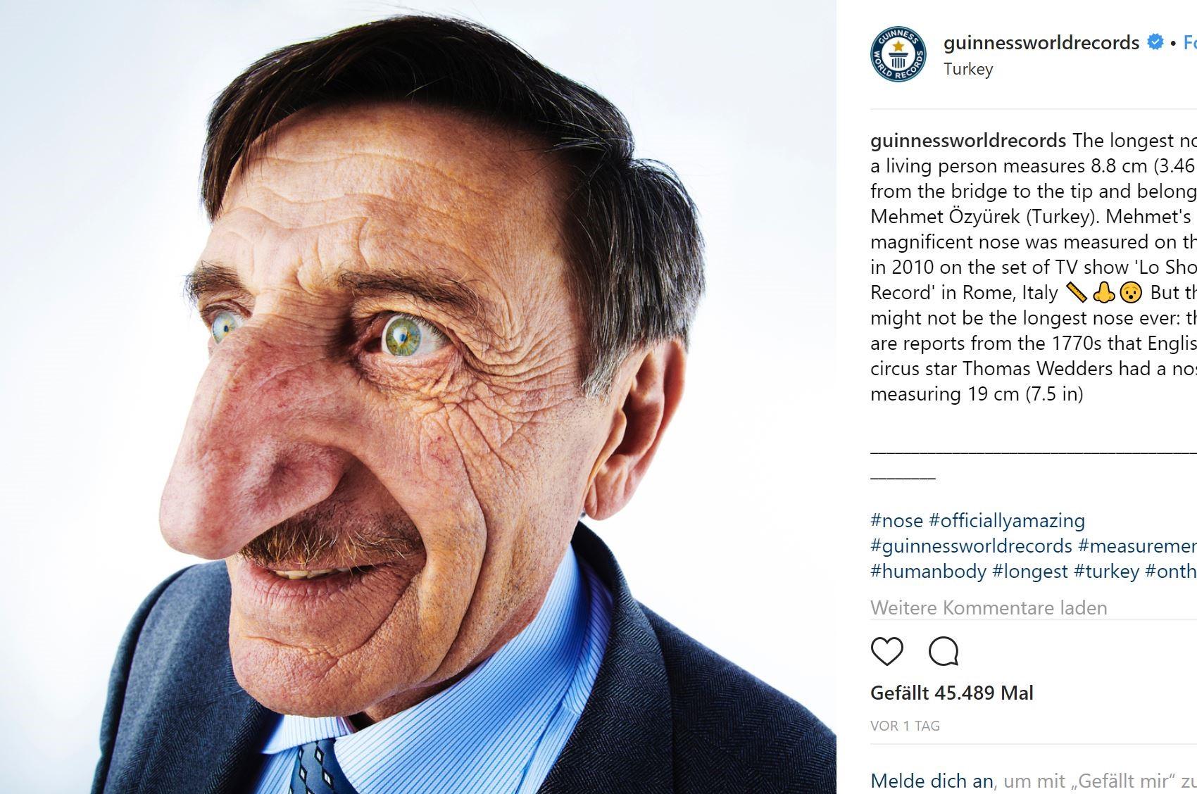 Njeriu me hundën më të gjatë në botë